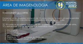 tomografia1